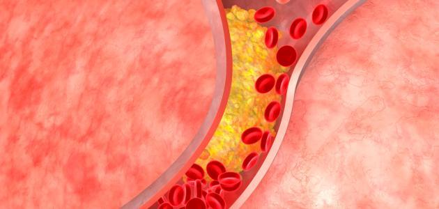 الاوعية الدموية وامراضها