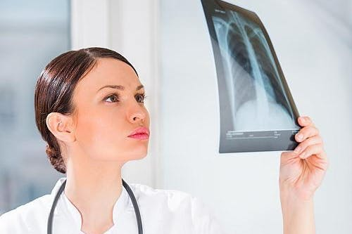 اشطر دكتور هشاشة عظام في مصر