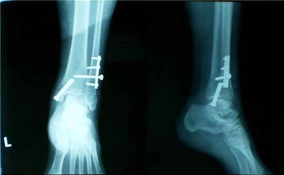 مدة شفاء شرخ العظام